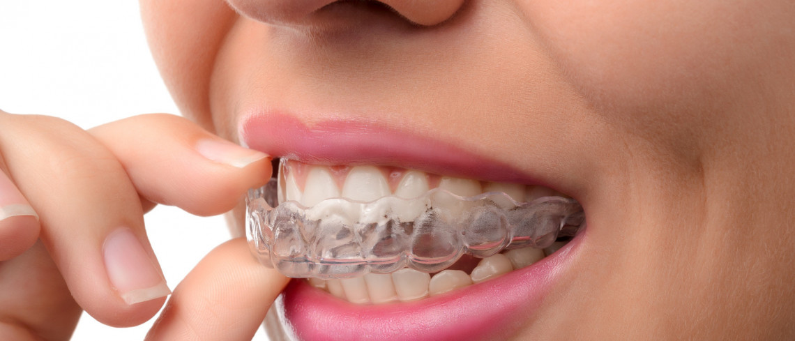 Invisalign Dentist in Dubai