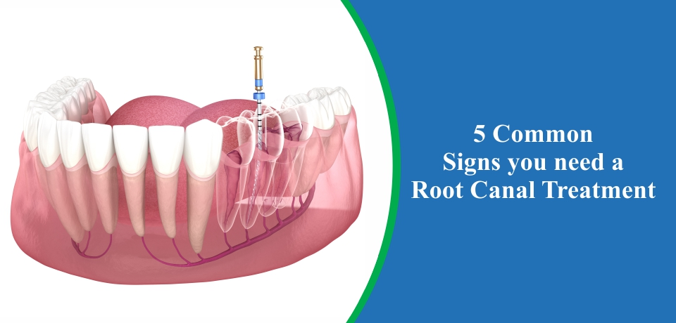 sign of root canal treatment