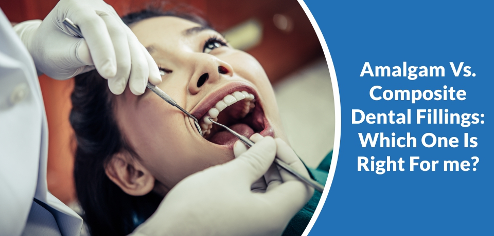 Amalgam Vs. Composite Dental Fillings