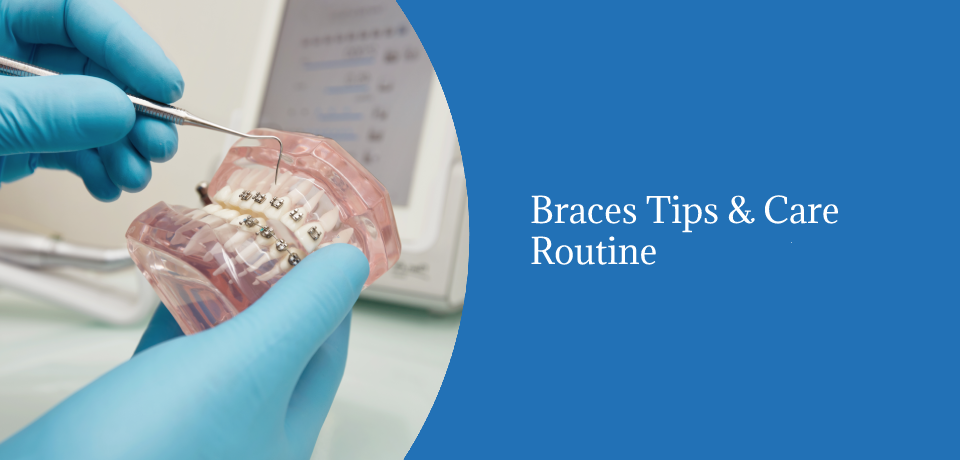 Braces Tips & Care Routine